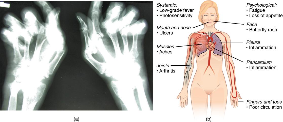 Rheumatoid arthritis xray and lupus symptoms.