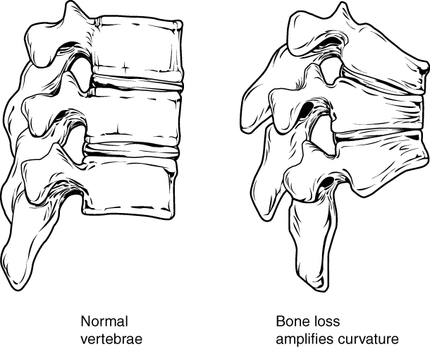 Changes to spine in osteoporosis. Image description available.