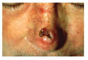 Image of squamous cell carcinoma on a person's nose