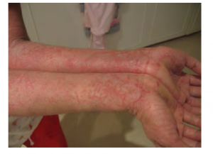 Person with eczema on their forearms.